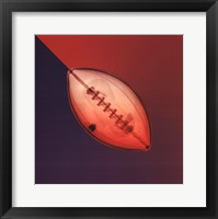 Football X-Ray Framed Print