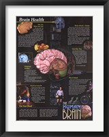 Framed Brain Health