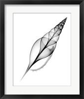 Tibia, Martin's X-Ray Framed Print