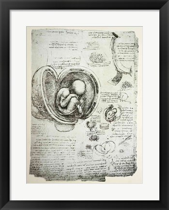 Framed Human Fetus in the Womb Print