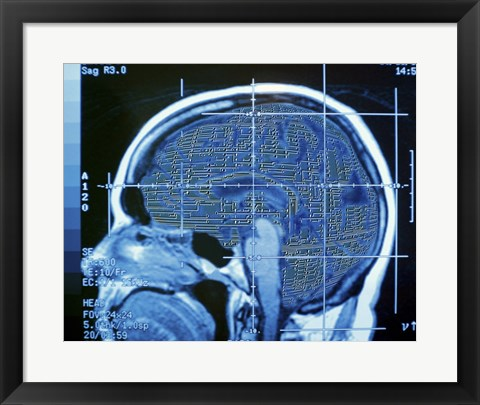 Framed Close-up of an MRI scan of the human brain Print