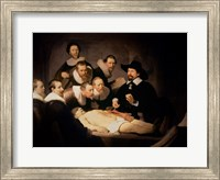 Framed Anatomy Lesson of Dr. Nicolaes Tulp, 1632